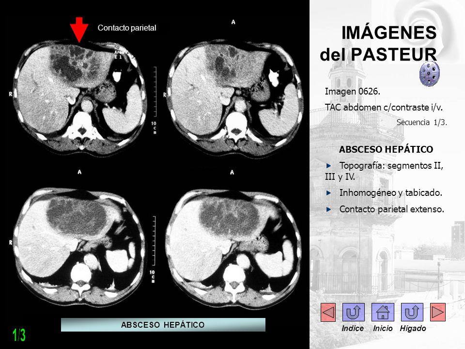 - --- - Imagen 0626. TAC abdomen c/contraste i/v. Secuencia 1/3. ABSCESO HEPÁTICO Topografía: segmentos II, III y IV. Inhomogéneo y tabicado. Contacto