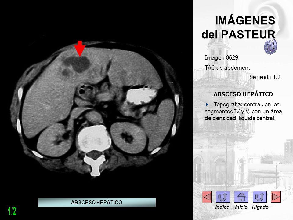 IMÁGENES del PASTEUR Imagen 0629. TAC de abdomen. Secuencia 1/2. ABSCESO HEPÁTICO Topografía: central, en los segmentos IV y V, con un área de densida