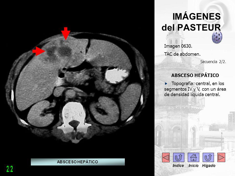 IMÁGENES del PASTEUR Imagen 0630. TAC de abdomen. Secuencia 2/2. ABSCESO HEPÁTICO Topografía: central, en los segmentos IV y V, con un área de densida