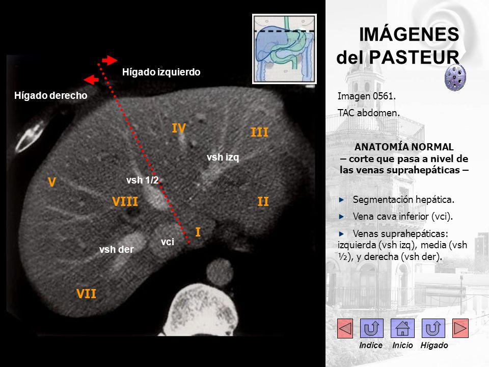 IMÁGENES del PASTEUR Imagen 0614.RNM abdomen. Corte axial.