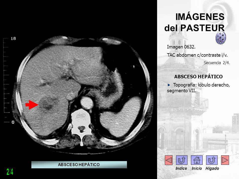 IMÁGENES del PASTEUR Imagen 0632. TAC abdomen c/contraste i/v. Secuencia 2/4. ABSCESO HEPÁTICO Topografía: lóbulo derecho, segmento VII. ABSCESO HEPÁT