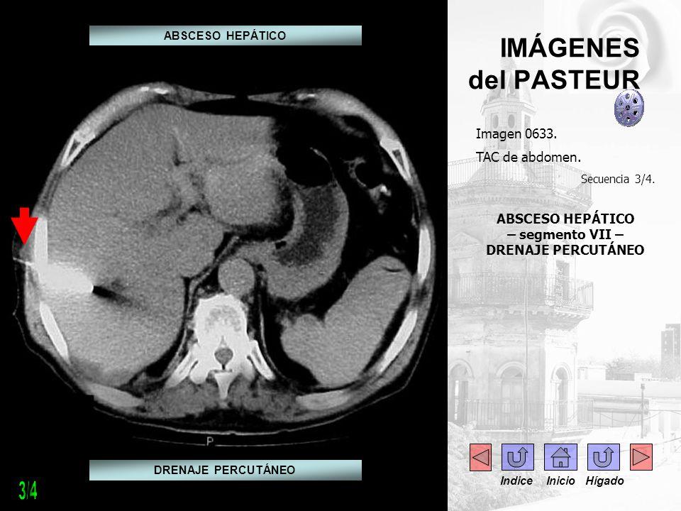 IMÁGENES del PASTEUR Imagen 0633. TAC de abdomen. Secuencia 3/4. ABSCESO HEPÁTICO – segmento VII – DRENAJE PERCUTÁNEO DRENAJE PERCUTÁNEO ABSCESO HEPÁT