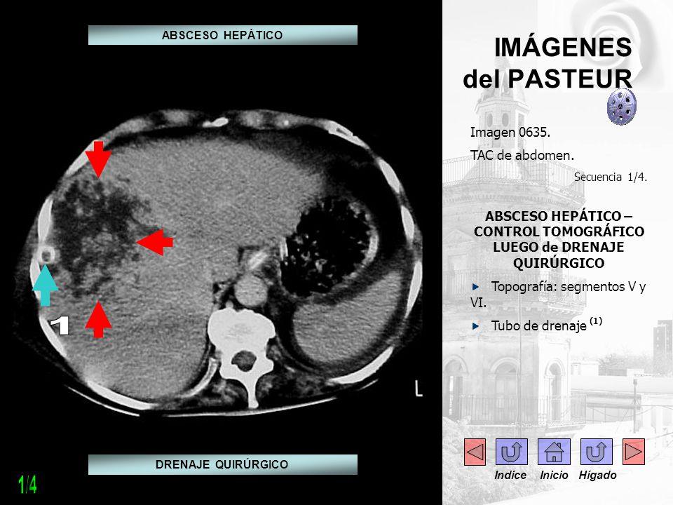 . IMÁGENES del PASTEUR Imagen 0635. TAC de abdomen. Secuencia 1/4. ABSCESO HEPÁTICO – CONTROL TOMOGRÁFICO LUEGO de DRENAJE QUIRÚRGICO Topografía: segm