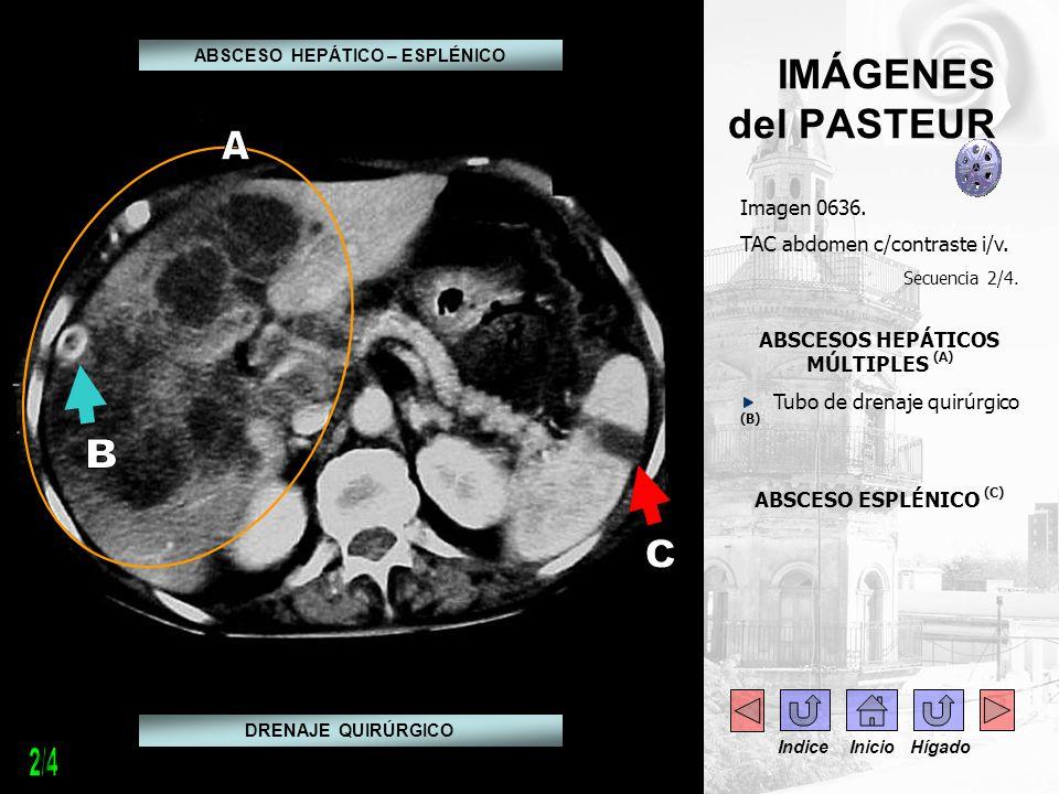 IMÁGENES del PASTEUR Imagen 0636. TAC abdomen c/contraste i/v. Secuencia 2/4. ABSCESOS HEPÁTICOS MÚLTIPLES (A) Tubo de drenaje quirúrgico (B) ABSCESO