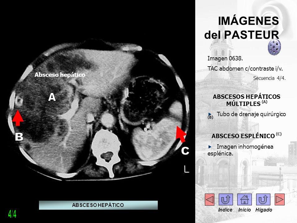 IMÁGENES del PASTEUR Imagen 0638. TAC abdomen c/contraste i/v. Secuencia 4/4. ABSCESOS HEPÁTICOS MÚLTIPLES (A) Tubo de drenaje quirúrgico (B) ABSCESO