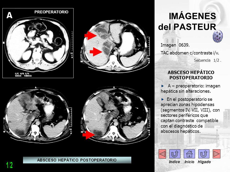 Imagen 0639. TAC abdomen c/contraste i/v. Secuencia 1/2. ABSCESO HEPÁTICO POSTOPERATORIO A – preoperatorio: imagen hepática sin alteraciones. En el po