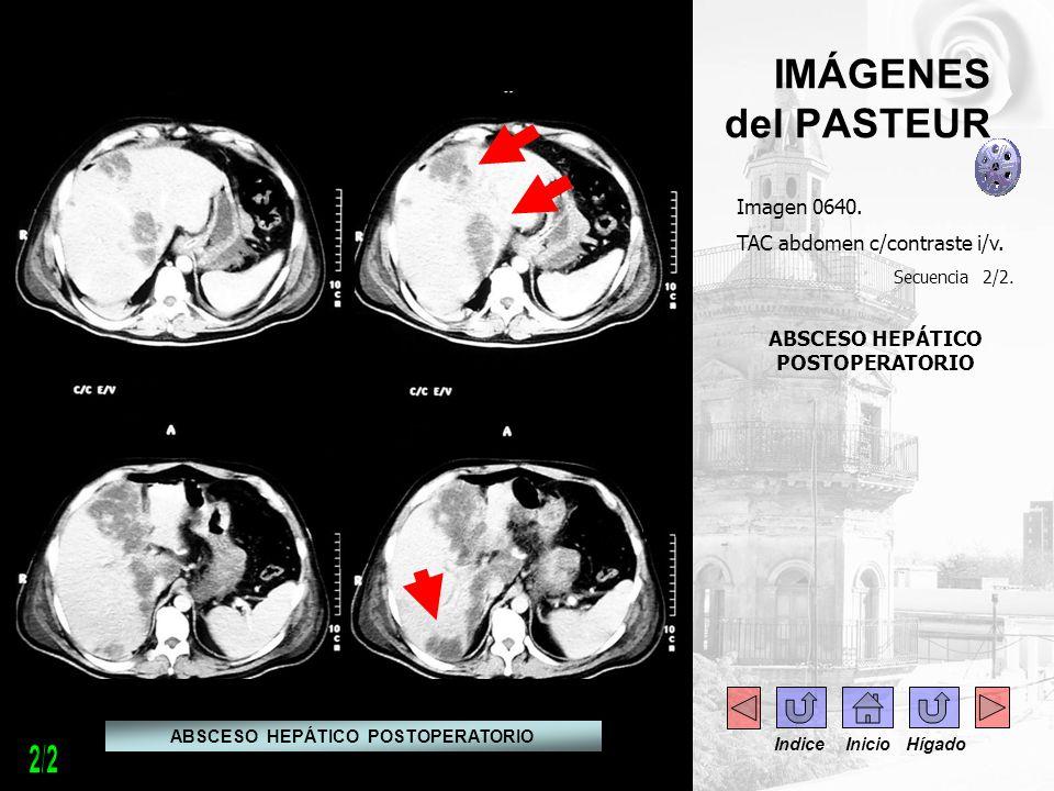 IMÁGENES del PASTEUR Imagen 0640. TAC abdomen c/contraste i/v. Secuencia 2/2. ABSCESO HEPÁTICO POSTOPERATORIO Indice Inicio Hígado