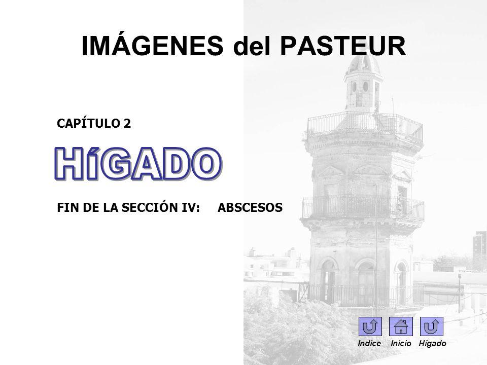 IMÁGENES del PASTEUR CAPÍTULO 2 FIN DE LA SECCIÓN IV: ABSCESOS Indice Inicio Hígado