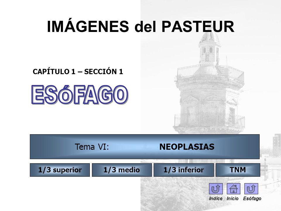 IMÁGENES del PASTEUR CAPÍTULO 1 – SECCIÓN 1 Indice Inicio Esófago Tema VI: NEOPLASIAS 1/3 inferior1/3 superior1/3 medioTNM