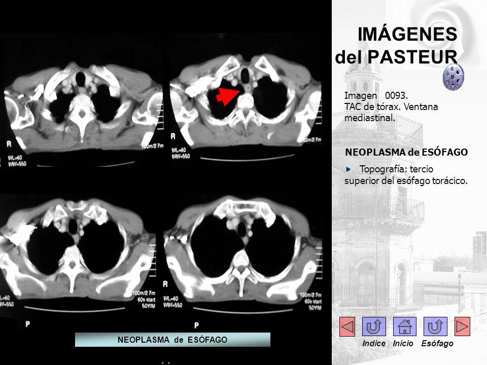 . Imagen 0093. TAC de tórax. Ventana mediastinal. NEOPLASMA de ESÓFAGO Topografía: tercio superior del esófago torácico. IMÁGENES del PASTEUR NEOPLASM