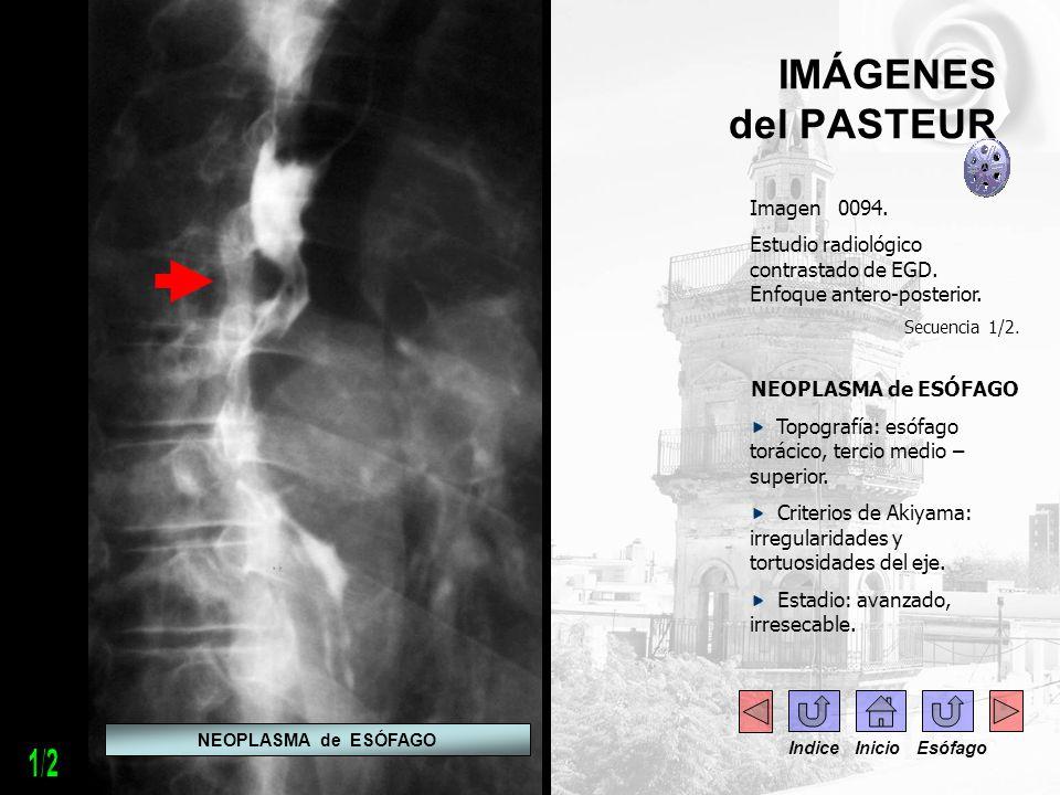 IMÁGENES del PASTEUR Imagen 0094. Estudio radiológico contrastado de EGD. Enfoque antero-posterior. Secuencia 1/2. NEOPLASMA de ESÓFAGO Topografía: es