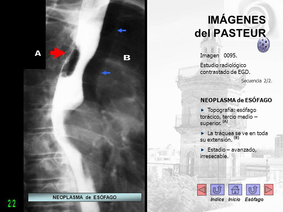 IMÁGENES del PASTEUR Imagen 0095. Estudio radiológico contrastado de EGD. Secuencia 2/2. NEOPLASMA de ESÓFAGO Topografía: esófago torácico, tercio med