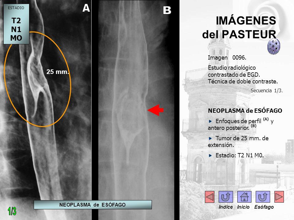 Imagen 0096. Estudio radiológico contrastado de EGD. Técnica de doble contraste. Secuencia 1/3. NEOPLASMA de ESÓFAGO Enfoques de perfil (A) y antero p