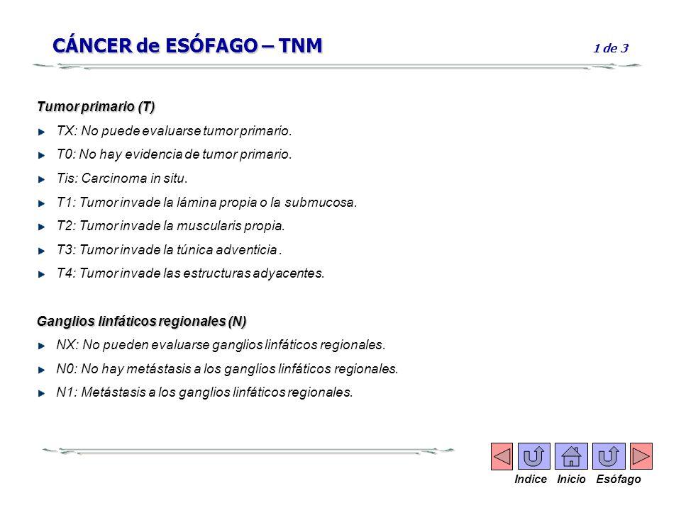 CÁNCER de ESÓFAGO – TNM CÁNCER de ESÓFAGO – TNM 1 de 3 Tumor primario (T) TX: No puede evaluarse tumor primario. T0: No hay evidencia de tumor primari