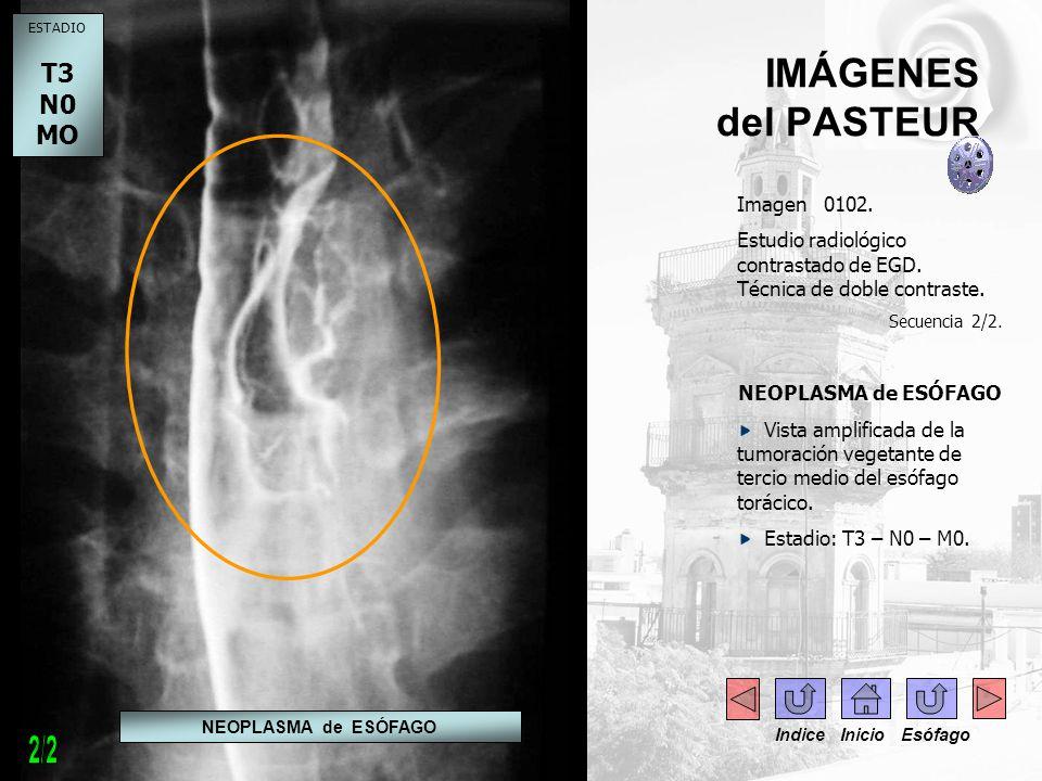 IMÁGENES del PASTEUR Imagen 0102. Estudio radiológico contrastado de EGD. Técnica de doble contraste. Secuencia 2/2. NEOPLASMA de ESÓFAGO Vista amplif