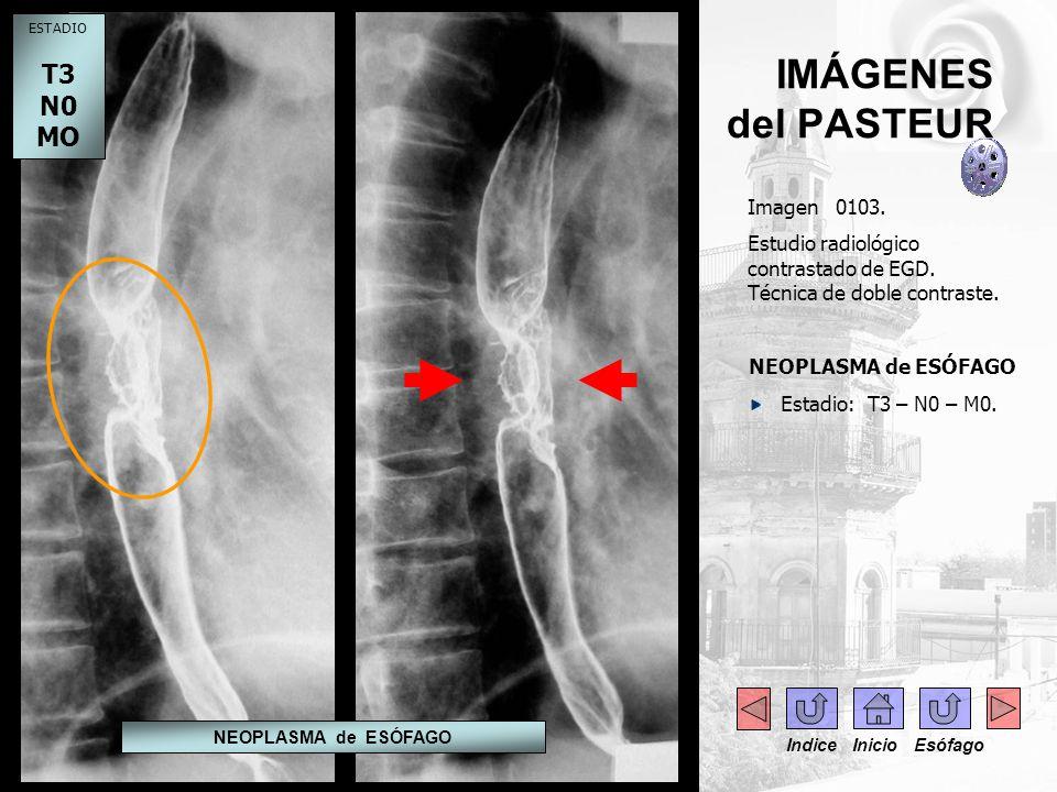 IMÁGENES del PASTEUR Imagen 0103. Estudio radiológico contrastado de EGD. Técnica de doble contraste. NEOPLASMA de ESÓFAGO Estadio: T3 – N0 – M0. ESTA