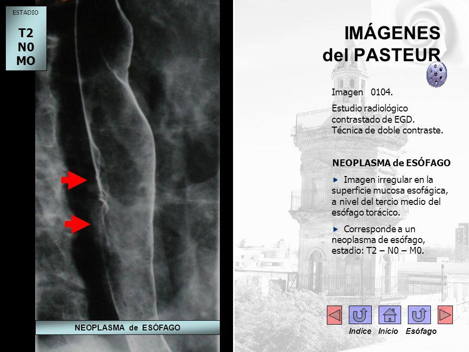 IMÁGENES del PASTEUR Imagen 0104. Estudio radiológico contrastado de EGD. Técnica de doble contraste. NEOPLASMA de ESÓFAGO Imagen irregular en la supe