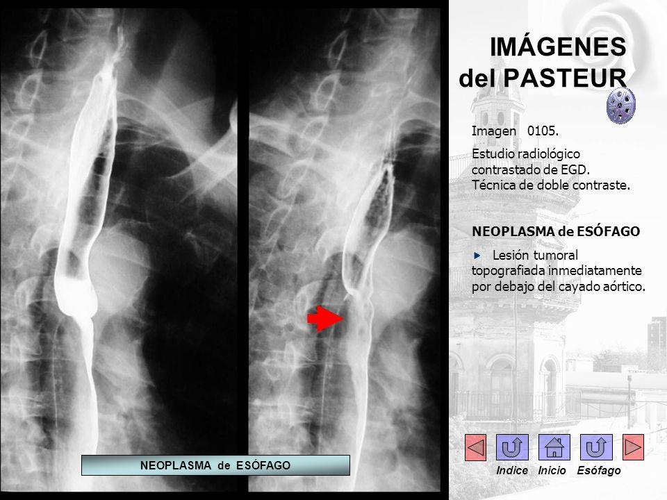 IMÁGENES del PASTEUR Imagen 0105. Estudio radiológico contrastado de EGD. Técnica de doble contraste. NEOPLASMA de ESÓFAGO Lesión tumoral topografiada