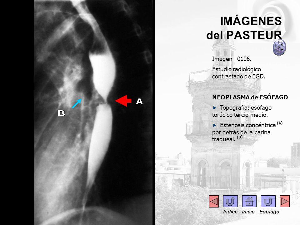 IMÁGENES del PASTEUR Imagen 0106. Estudio radiológico contrastado de EGD. NEOPLASMA de ESÓFAGO Topografía: esófago torácico tercio medio. Estenosis co