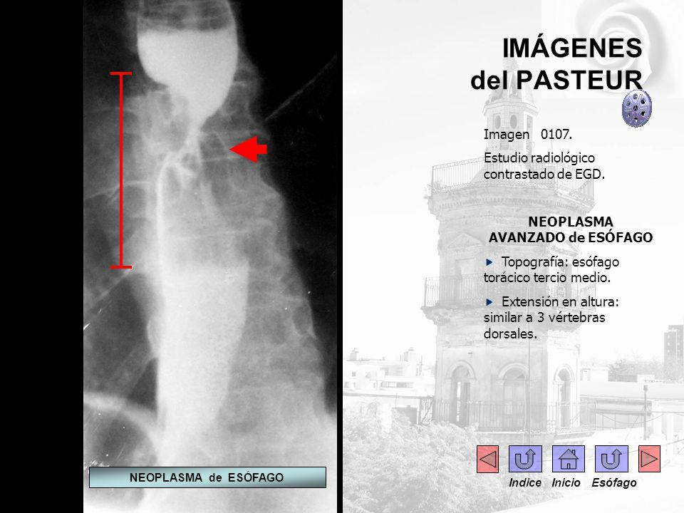 IMÁGENES del PASTEUR Imagen 0107. Estudio radiológico contrastado de EGD. NEOPLASMA AVANZADO de ESÓFAGO Topografía: esófago torácico tercio medio. Ext