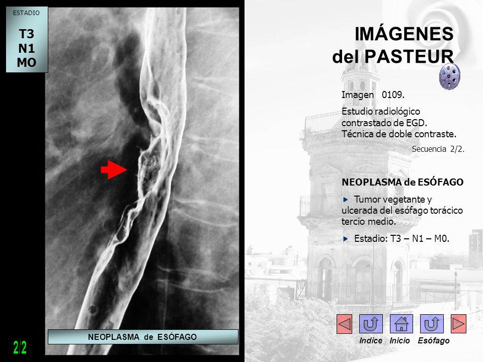 - IMÁGENES del PASTEUR Imagen 0109. Estudio radiológico contrastado de EGD. Técnica de doble contraste. Secuencia 2/2. NEOPLASMA de ESÓFAGO Tumor vege