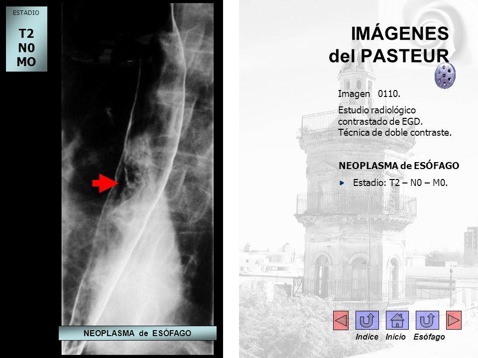 IMÁGENES del PASTEUR Imagen 0110. Estudio radiológico contrastado de EGD. Técnica de doble contraste. NEOPLASMA de ESÓFAGO Estadio: T2 – N0 – M0. ESTA