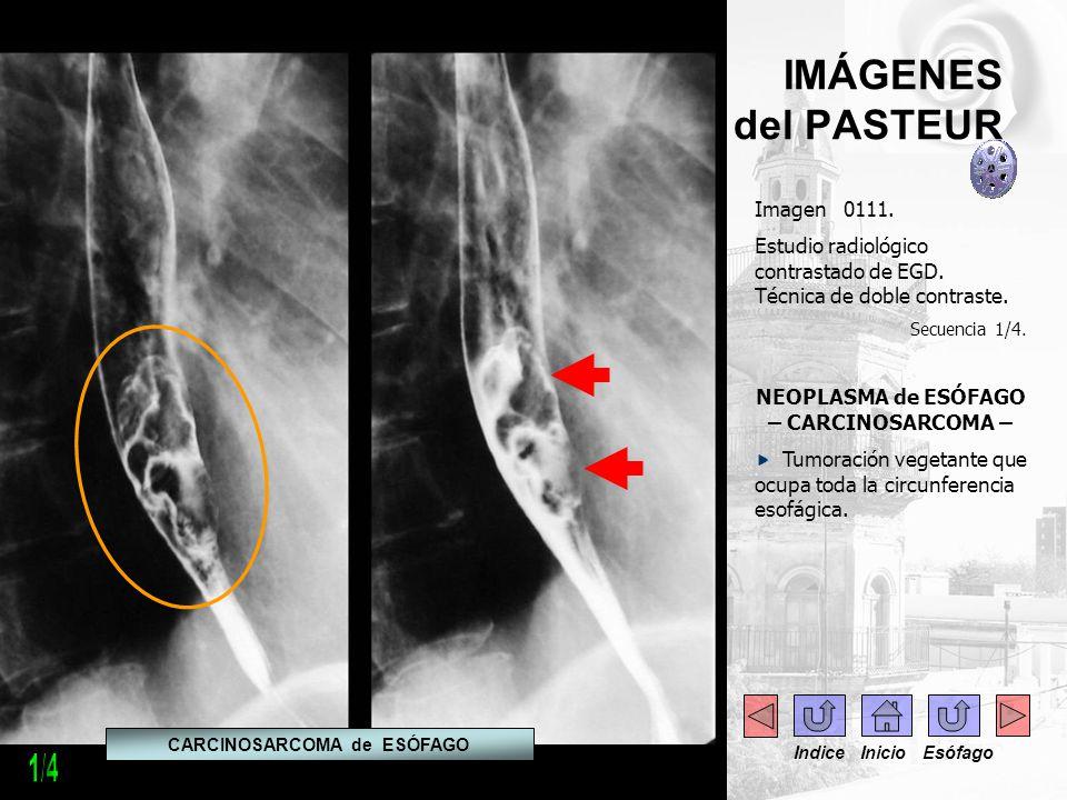 IMÁGENES del PASTEUR Imagen 0111. Estudio radiológico contrastado de EGD. Técnica de doble contraste. Secuencia 1/4. NEOPLASMA de ESÓFAGO – CARCINOSAR