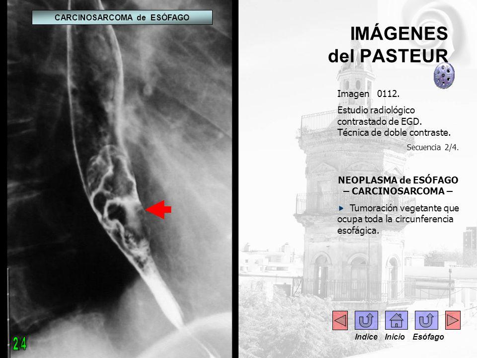 IMÁGENES del PASTEUR Imagen 0112. Estudio radiológico contrastado de EGD. Técnica de doble contraste. Secuencia 2/4. NEOPLASMA de ESÓFAGO – CARCINOSAR