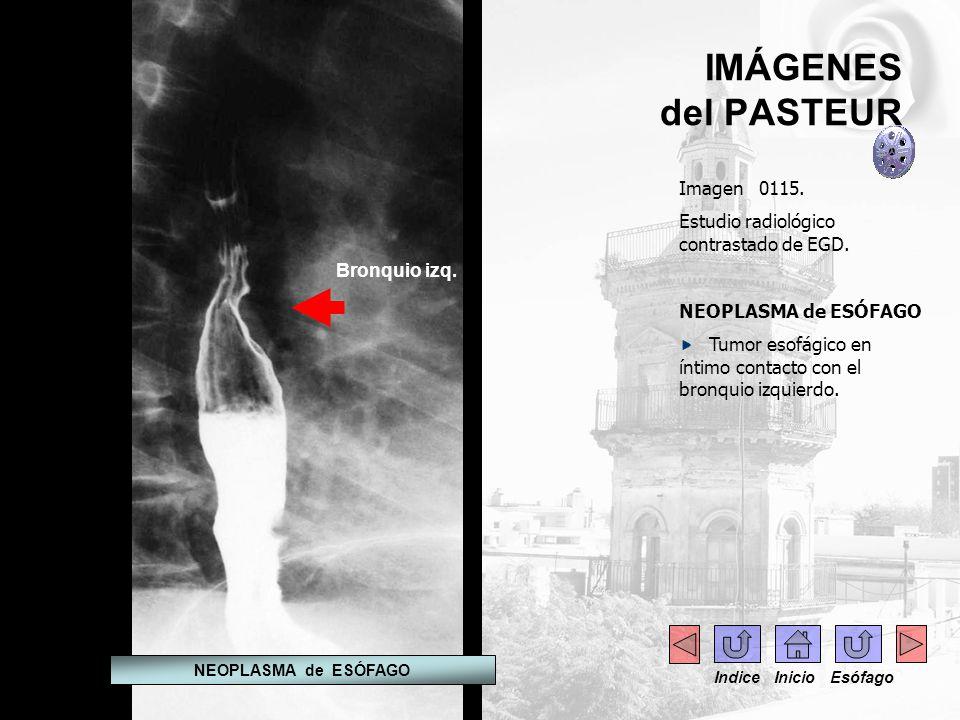 IMÁGENES del PASTEUR Imagen 0115. Estudio radiológico contrastado de EGD. NEOPLASMA de ESÓFAGO Tumor esofágico en íntimo contacto con el bronquio izqu