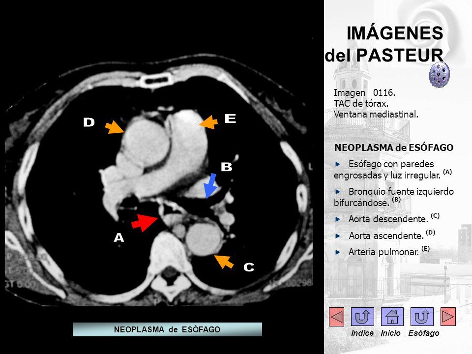 IMÁGENES del PASTEUR Imagen 0116. TAC de tórax. Ventana mediastinal. NEOPLASMA de ESÓFAGO Esófago con paredes engrosadas y luz irregular. (A) Bronquio