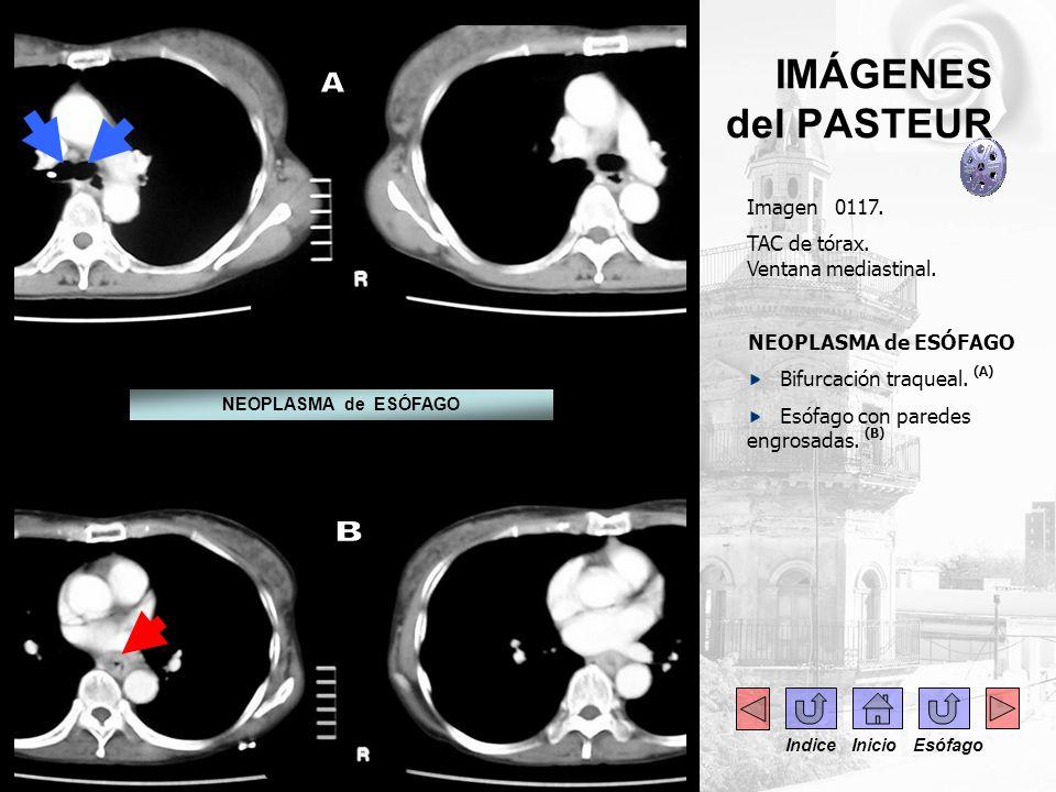 IMÁGENES del PASTEUR Imagen 0117. TAC de tórax. Ventana mediastinal. NEOPLASMA de ESÓFAGO Bifurcación traqueal. (A) Esófago con paredes engrosadas. (B