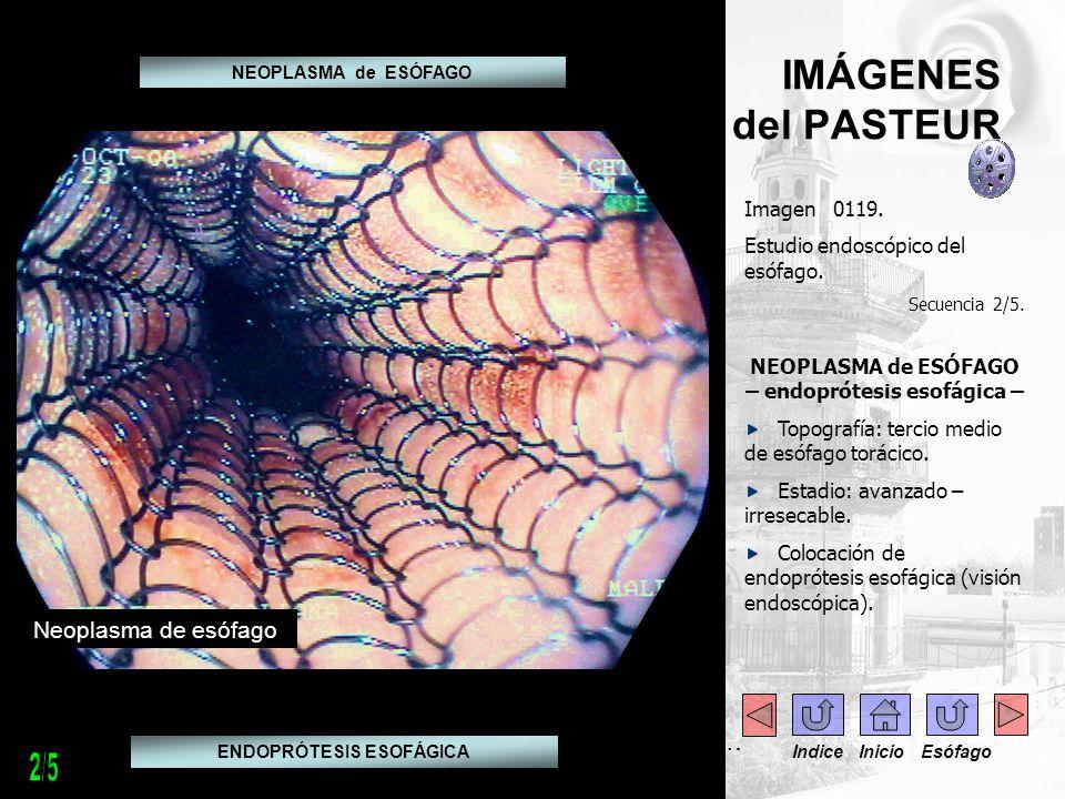 IMÁGENES del PASTEUR Imagen 0119. Estudio endoscópico del esófago. Secuencia 2/5. NEOPLASMA de ESÓFAGO – endoprótesis esofágica – Topografía: tercio m