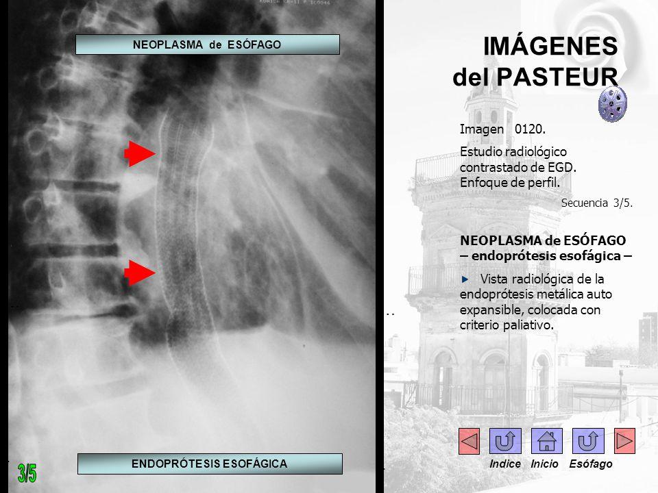 IMÁGENES del PASTEUR Imagen 0120. Estudio radiológico contrastado de EGD. Enfoque de perfil. Secuencia 3/5. NEOPLASMA de ESÓFAGO – endoprótesis esofág