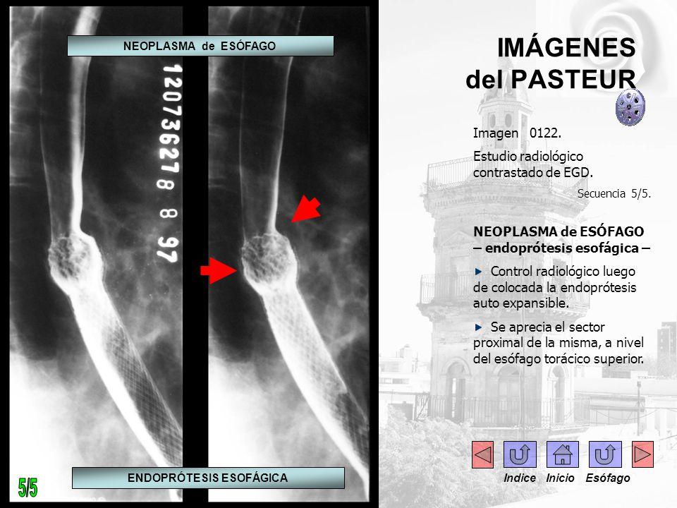 IMÁGENES del PASTEUR Imagen 0122. Estudio radiológico contrastado de EGD. Secuencia 5/5. NEOPLASMA de ESÓFAGO – endoprótesis esofágica – Control radio