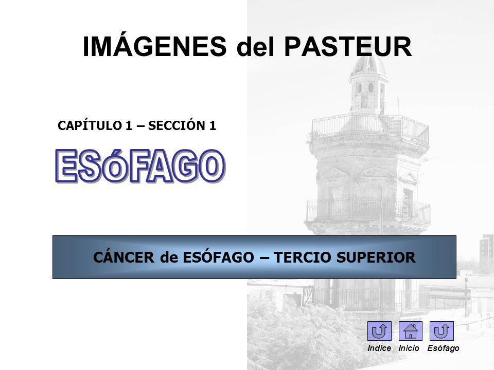 IMÁGENES del PASTEUR CAPÍTULO 1 – SECCIÓN 1 CÁNCER de ESÓFAGO – TERCIO SUPERIOR Indice Inicio Esófago