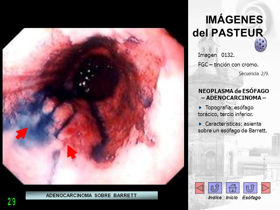 IMÁGENES del PASTEUR Imagen 0132. FGC – tinción con cromo. Secuencia 2/9. NEOPLASMA de ESÓFAGO – ADENOCARCINOMA – Topografía: esófago torácico, tercio