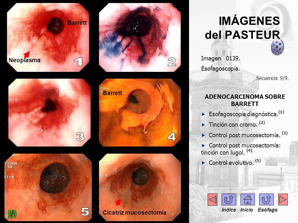 Imagen 0139. Esofagoscopía. Secuencia 9/9. ADENOCARCINOMA SOBRE BARRETT Esofagoscopía diagnóstica. (1) Tinción con cromo. (2) Control post mucosectomí