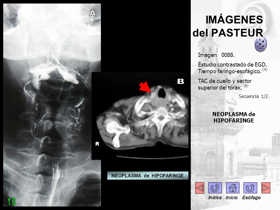 Imagen 0088. Estudio contrastado de EGD. Tiempo faringo-esofágico. (A) TAC de cuello y sector superior del tórax. (B) Secuencia 1/2. NEOPLASMA de HIPO