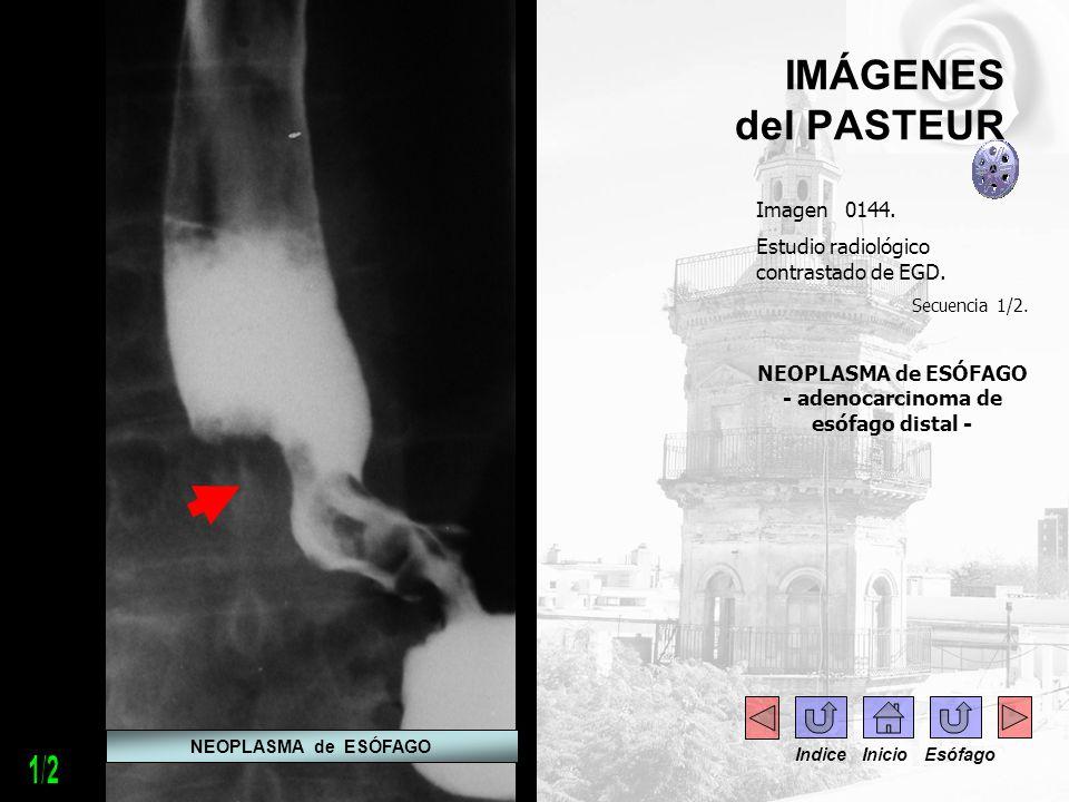 IMÁGENES del PASTEUR Imagen 0144. Estudio radiológico contrastado de EGD. Secuencia 1/2. NEOPLASMA de ESÓFAGO - adenocarcinoma de esófago distal - NEO