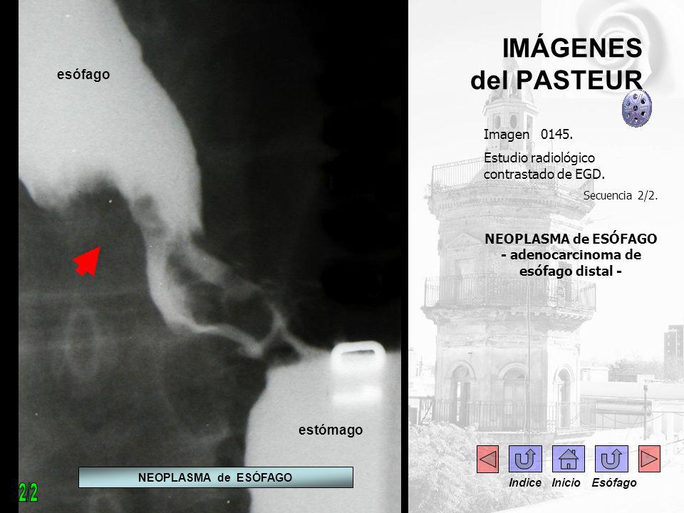 IMÁGENES del PASTEUR Imagen 0145. Estudio radiológico contrastado de EGD. Secuencia 2/2. NEOPLASMA de ESÓFAGO - adenocarcinoma de esófago distal - NEO