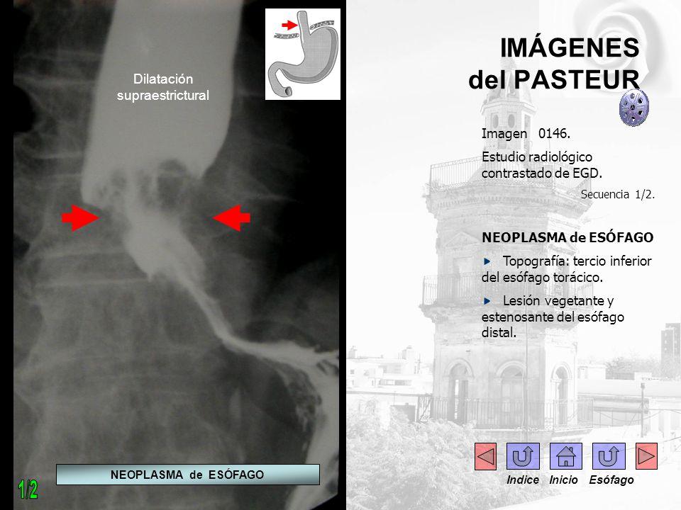 IMÁGENES del PASTEUR Imagen 0146. Estudio radiológico contrastado de EGD. Secuencia 1/2. NEOPLASMA de ESÓFAGO Topografía: tercio inferior del esófago