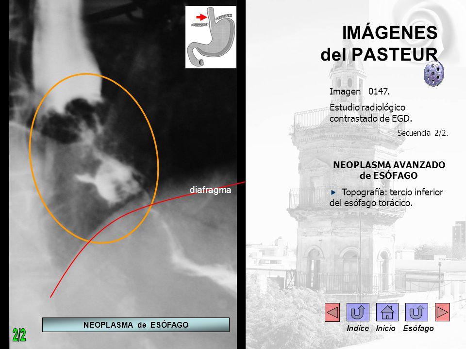 IMÁGENES del PASTEUR Imagen 0147. Estudio radiológico contrastado de EGD. Secuencia 2/2. NEOPLASMA AVANZADO de ESÓFAGO Topografía: tercio inferior del