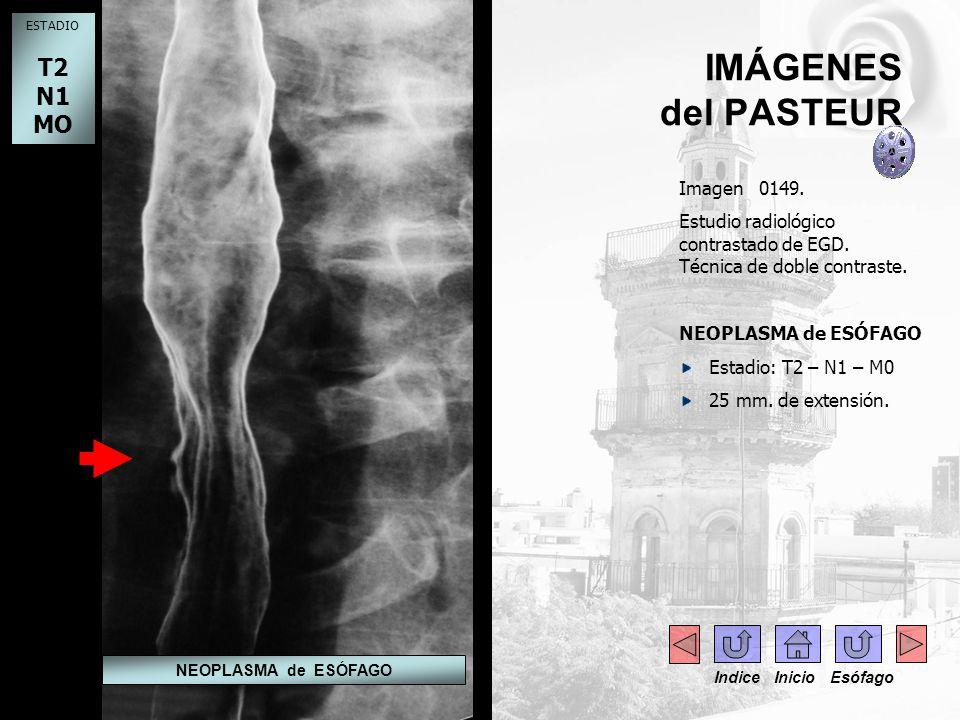 IMÁGENES del PASTEUR Imagen 0149. Estudio radiológico contrastado de EGD. Técnica de doble contraste. NEOPLASMA de ESÓFAGO Estadio: T2 – N1 – M0 25 mm