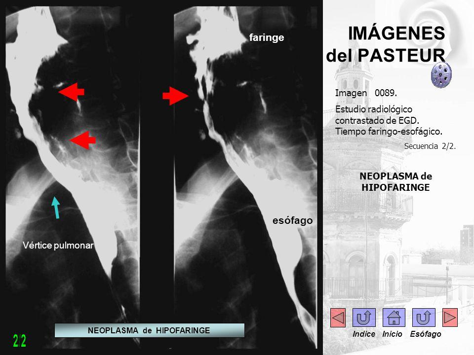 IMÁGENES del PASTEUR Imagen 0089. Estudio radiológico contrastado de EGD. Tiempo faringo-esofágico. Secuencia 2/2. NEOPLASMA de HIPOFARINGE Vértice pu