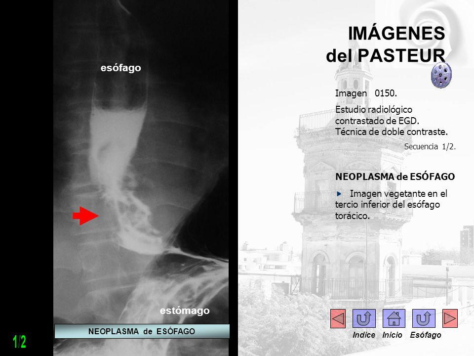 IMÁGENES del PASTEUR Imagen 0150. Estudio radiológico contrastado de EGD. Técnica de doble contraste. Secuencia 1/2. NEOPLASMA de ESÓFAGO Imagen veget