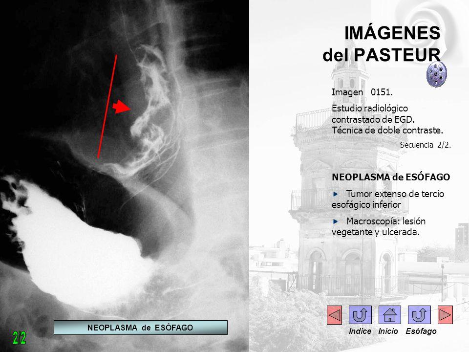 IMÁGENES del PASTEUR Imagen 0151. Estudio radiológico contrastado de EGD. Técnica de doble contraste. Secuencia 2/2. NEOPLASMA de ESÓFAGO Tumor extens