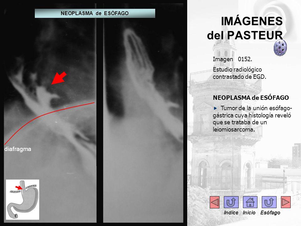 IMÁGENES del PASTEUR Imagen 0152. Estudio radiológico contrastado de EGD. NEOPLASMA de ESÓFAGO Tumor de la unión esófago- gástrica cuya histología rev