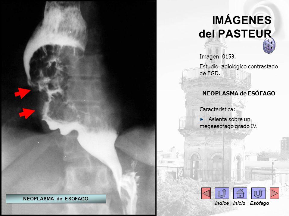 IMÁGENES del PASTEUR Imagen 0153. Estudio radiológico contrastado de EGD. NEOPLASMA de ESÓFAGO Característica: Asienta sobre un megaesófago grado IV.