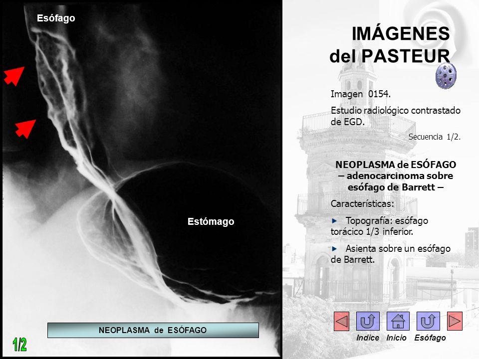 IMÁGENES del PASTEUR Imagen 0154. Estudio radiológico contrastado de EGD. Secuencia 1/2. NEOPLASMA de ESÓFAGO – adenocarcinoma sobre esófago de Barret