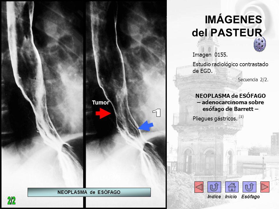 IMÁGENES del PASTEUR Imagen 0155. Estudio radiológico contrastado de EGD. Secuencia 2/2. NEOPLASMA de ESÓFAGO – adenocarcinoma sobre esófago de Barret